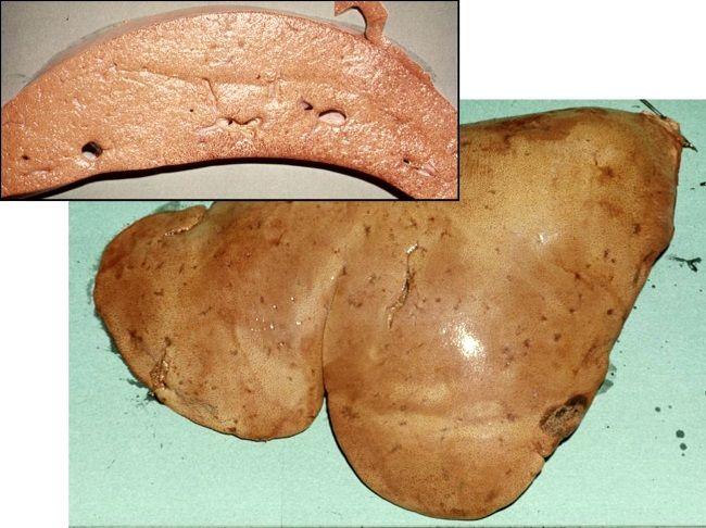 алментарная дистрофія печінки норок