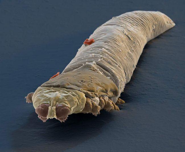 Кліщ роду Demodex (лат. Demodex).