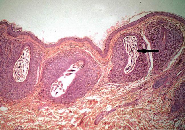 Demodex вражають волосяну цибулину, паразитуючи в шкірних покривах людини.