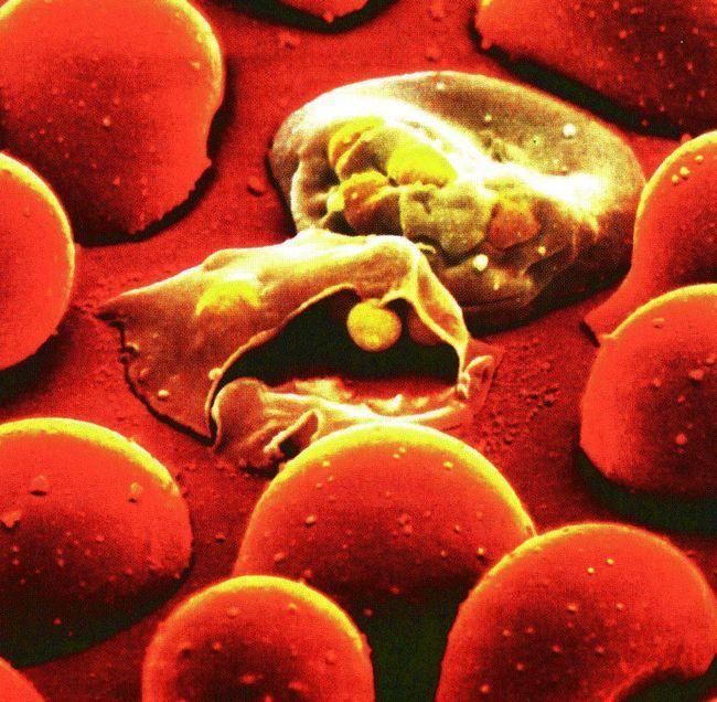 Малярійний плазмодій - мікроорганізм, що викликає малярію.