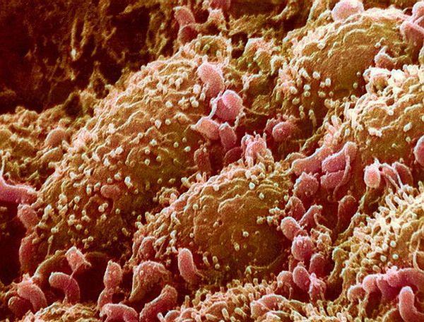 У вашому надмірній вазі можуть бути винні `` неправильні `` бактерії